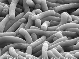 Lactobacillus-bulgaricus